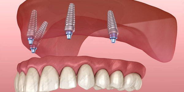 How to Clean All-on-4 Implants