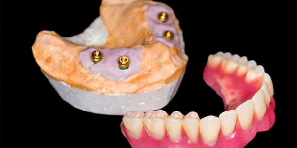 The Lowdown on Overdenture Systems and Their Abutments