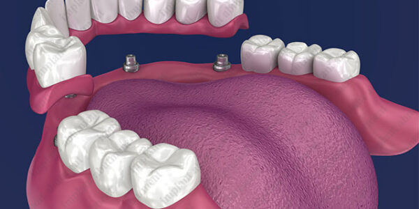 The Case for Partial Overdentures